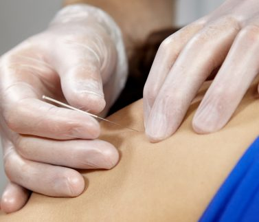 Dry Needling - Clínica Fortius